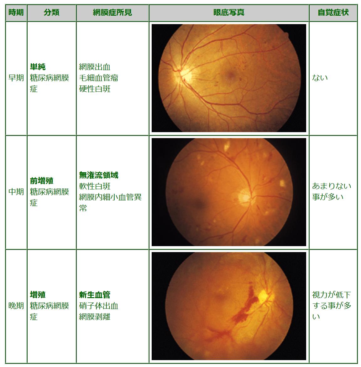 糖尿病と目