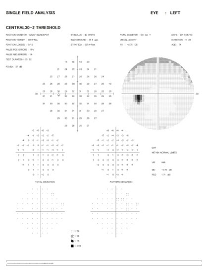 HF30 右眼 緑内障